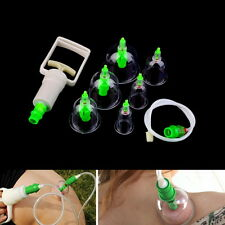 Chinese Tranditional Cupping Massage Acupuncture Medical Vacuum Stress Relief H5