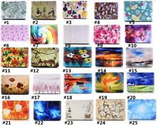 "Fashion Printing Hard Laptop Case Cover for Macbook Air Pro 11""13""15"" Retina 12"""
