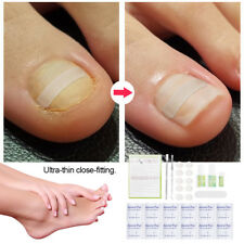 Ingrown Pedicure Toenail Straightening Toe Nail Patch Correction Sticker Set SE