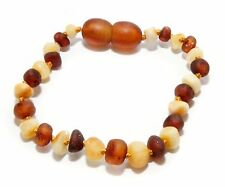 Genuine RAW Baltic Amber Beads Baby Anklet Bracelet Mixed  5.1 - 5.5 in