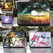 """Decal Sticker Skin Cover Protector Anti-scratch for New MacBook Pro 13.3 """""""