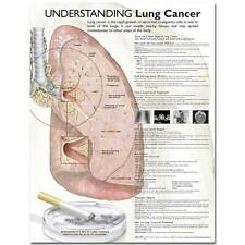 Anatomical Chart Company Understanding Lung Cancer Chart - 20'' x 26''