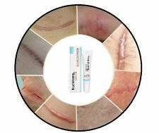 Nuobisong Anti and Removal Gel Cream for Surgery Burn Cut Tattoo Laser Acne Scar