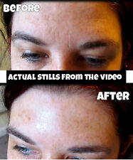 Valentines gift instant Face lift flawless skin dark eyes circle reduce wrinkles