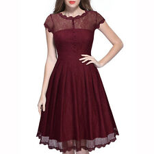 Women Lace Elegant Crew Neck Short Sleeve Knee Length Dress Back Open Slim Dress