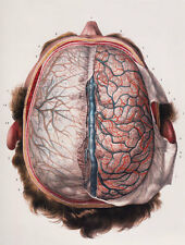 ML11 Vintage 1800's Medical Human Brain Top View Surgical Poster  A2/A3/A4