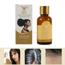 New Women Men Natural Hair Loss Treatment Unisex Fast Growth Regrowth Essence