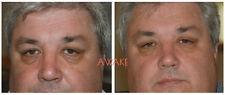 Maximum Caffeine Eye Serum For Eye Bags Puffy Eyes Dark Circles