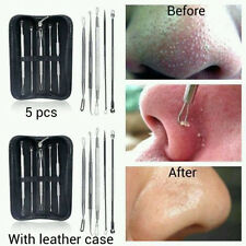 5-pcs Blackhead Whitehead Pimple Acne Blemish Extractor Remover Tool Set Kit UK