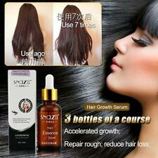 Alopecia Hair Loss Fast Restoration Oil Growth Essence Pilatory Ginger Baldness