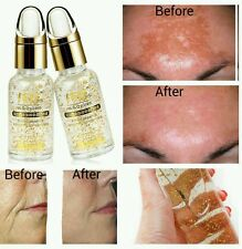 HYALURONIC ACID 24kt Gold the best Anti Ageing Wrinkle and Face whitening serum.