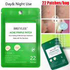 Acne Pimple Patch  Pimple Removal Acne Treatment Stickers Blemish Spot Remover