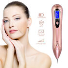 Beauty Skin Remover Portable Laser Dot Freckle Warts Electric Tattoo Removal Pen