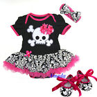 Baby Black Hot Pink Skull Damask Romper Pettiskirt Bodysuit Shoes Dress 0-18M