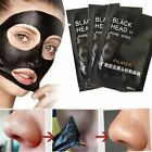 2 - 300 stk Black Head Peel off Killer Gesichtsmaske Pilaten Mitesser Akne
