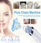 Electronic Blackhead Pore Remover Vacuum Suction Facial Acne Cleaner Extractor