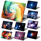 """Galaxy Painting Hard Cases Cover +KB +SP For Macbook Air 11 Pro 13""""15""""Retina 12"""""""