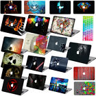 "Cool Pattern paint Hard Case+KB Cover for Macbook Pro 13""15""Retina Air 13""11""12"""