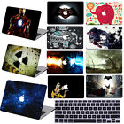"Rubberized painting Hard Case Cover For Macbook Air 11 Pro 13""15Touch Bar Retina"