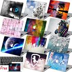 """3IN1 Laptop Cool Painted Hard Case Cover For Macbook Pro Air 11""""13""""15""""Retina 12"""""""
