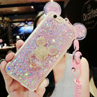 New Cute Bling Glitter Mickey Ring Holder Stand Case Cover for iPhone with Strap