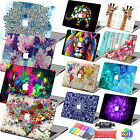 "Laptop Cute Pattern Hard Case Protector cover For Macbook Air 11""/12""Pro 13""15"