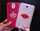 Crown Sexy Lips Bling Diamonds Glitter Case Cover For Samsung Mobile Phone SZS