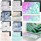 Granite Skin Painting Marble Hard Rubberized Case Cover for Macbook Laptop Shell
