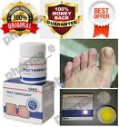 NOGTIMICIN NOGTIMICYN NAIL ANTIFUNGUS INFECTION TREARMENT FOOT ANTIFUNGAL FOOT