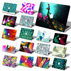 Laptop Accessories Peacock Print Rubberized Hard Case Cover For Macbook Pro Air