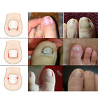 Fixer Pedicure Recovers Toe Nails Foot Care Nail Tool Correction File Correctors
