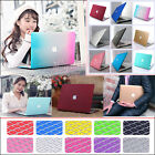 "2in1 Rubberized Quicksand Hard Case Cover Cut-out for MacBook Air 11""13""/Pro 13"""
