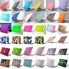 "63-Color Rubberized Matte Hard Case Cover Skin for MacBook Air Pro11"" 13""+Retina"