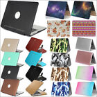 "Marble/ PU Leather/ Rainbow Matte Case Cover for MacBook 12"" Air Pro 11"" 13""15"""