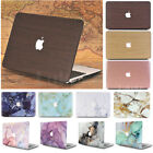 "Frosted Matte Hard Case Skin for Apple Macbook Pro 13"" and Retina Pro 13"""