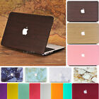 """Frosted Matte Hard Case Skin for Apple Macbook Air Pro 11 12 13 15"""" and Retina"""