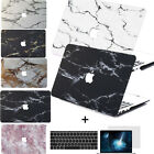 "pattern Paint Marble Hard Case key Cover Fr Macbook Pro Air 11 13""15"" Retina 12"""