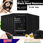 PEEL OFF FACE MASK BLACKHEAD ACNE REMOVER MUD DEEP CLEANSING KILLER PORE STRIP