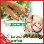 Anti-fungal Peeling Foot Soak Free Shipping