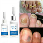 ChuNi Nail Repair Essence Remove Onychomycosis Serum Fungal Nail Treatment USA