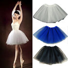 Sunmmer New Women Casual Ballet Tulle Dress Cocktail Party Bubble Mini Skirt