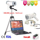 Sony Image 800,000 Pixels Video Electronic Colposcope+Software+Tripod+Gift Sale