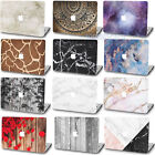 """Rubberized Marble Wood Texture Paint Hard Case Cover Fr Macbook Air Pro 11""""13""""15"""