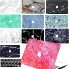 """Painting Marble Hard Case key Cover For Macbook Pro Air 11 13""""15"""" Retina 12"""""""