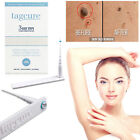 Tagcure Skin Tag DIY Removal Kit 3 Step Safe Permanent Treatment Remover Device £8.99 GBP on eBay