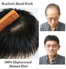 Men's toupee hair replacement system top piece for men hair loss bald,free part
