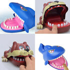 Large Bulldog Shark Mouth Dentist Bite Finger Game Funny Children Toy Cute UK