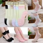 Women&Girls Elegance Ultrathin Transparent Crystal Lace Elastic Short Socks