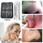 7Pcs Blackhead Whitehead Pimple Blemish Acne Comedone Extractor Remover Set Kit