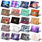 "Print Laptop Rubberized Hard Case Cover For Macbook Pro Air 11 13"" 15"" Retina 12"